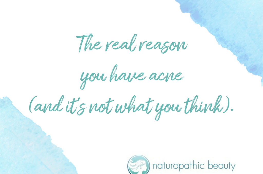 The real reason you have acne (it's not what you think).