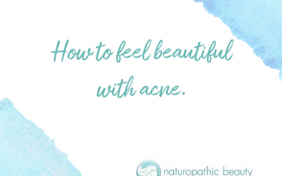 How to feel beautiful with acne.