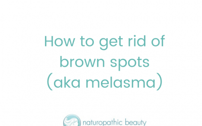 How to get rid of brown spots (aka melasma)