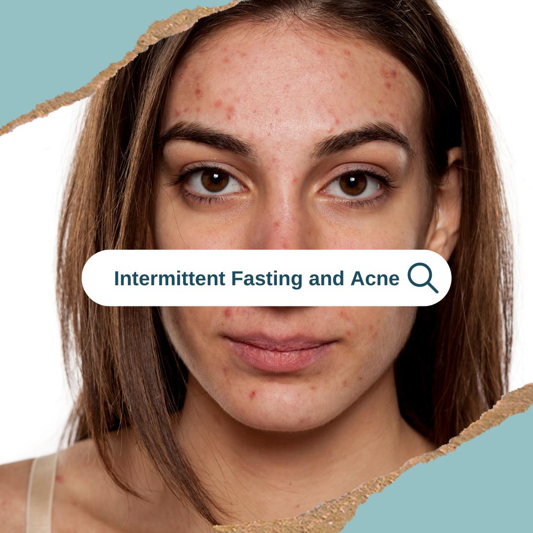 intermittent fasting acne