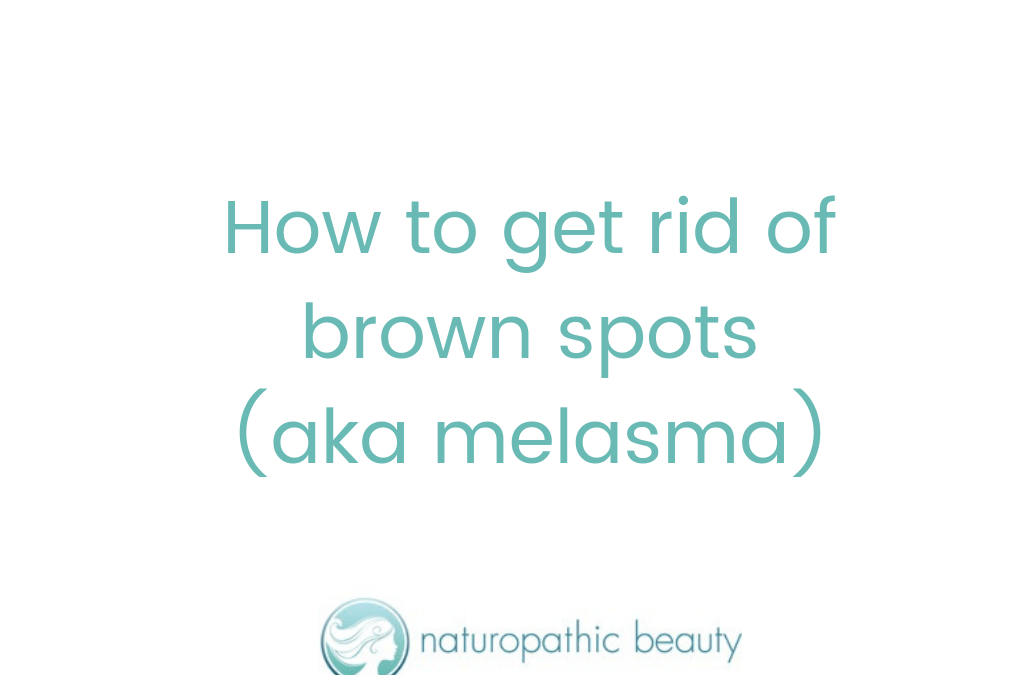 How to get rid of brown spots (aka melasma)