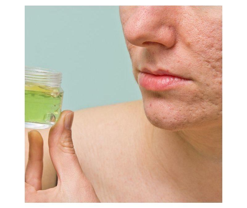 Acne Treatment Spot