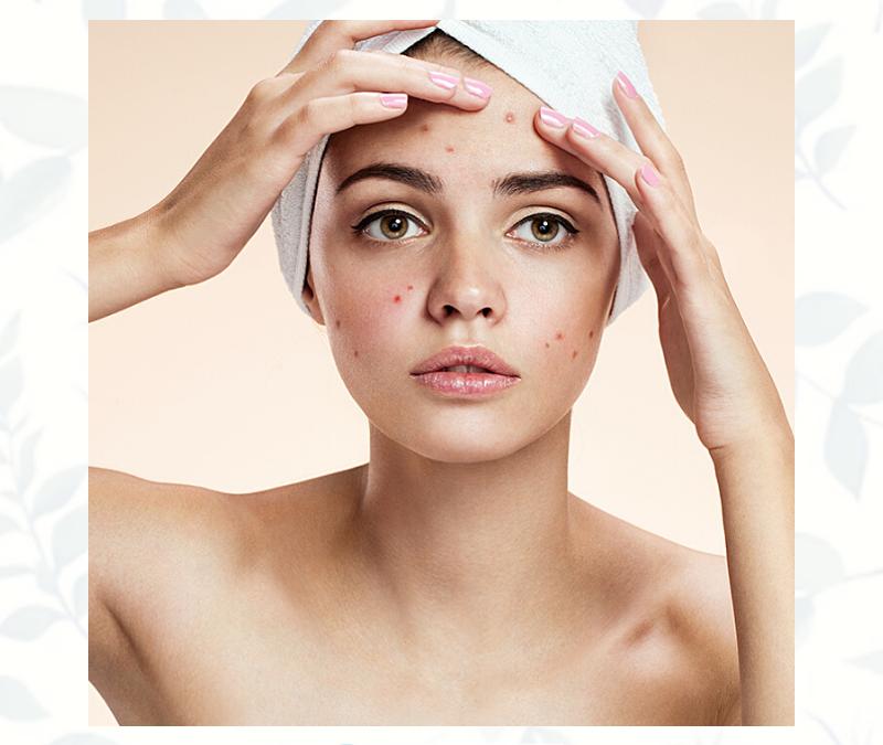 Why Battling Acne Isn't Vanity
