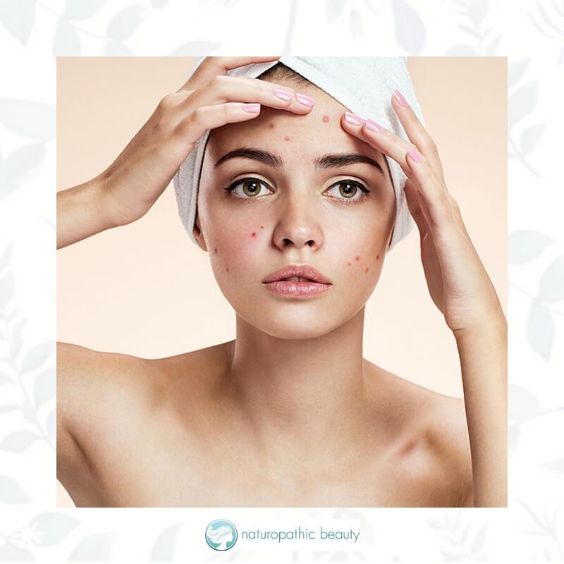 woman battling acne