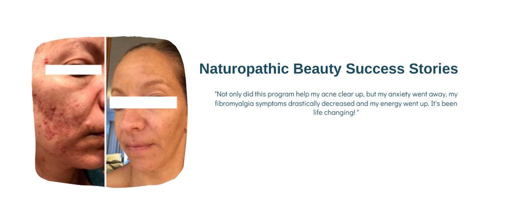 acne programs